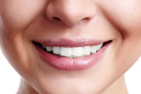 치아 관리가 안 되 있으면 웃는 게 웃는 게 아니다. 입 냄새 없고, 깨끗한 구강 관리를 위한 전문가의 팁!::치아관리,치아,입냄새,구강관리,헬스,건강,엘르,elle.co.kr::