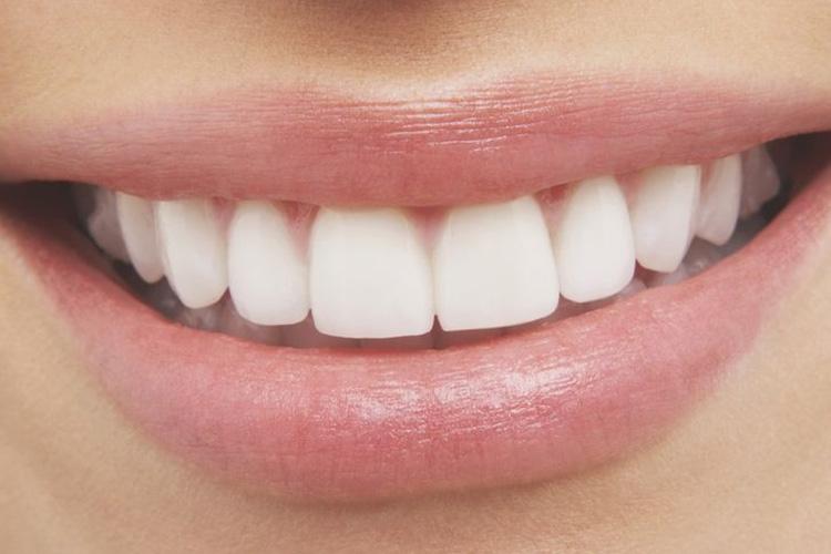 눈처럼 하얀 치아를 원한다면 이 음식들은 피하라!::치아, 건강, 착색, 화이트닝, 음식, 미백, 치아미백, 치아에나쁜음식, 엘르, elle.co.kr::